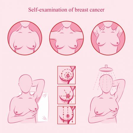 Breast Self Examination - What to Do?